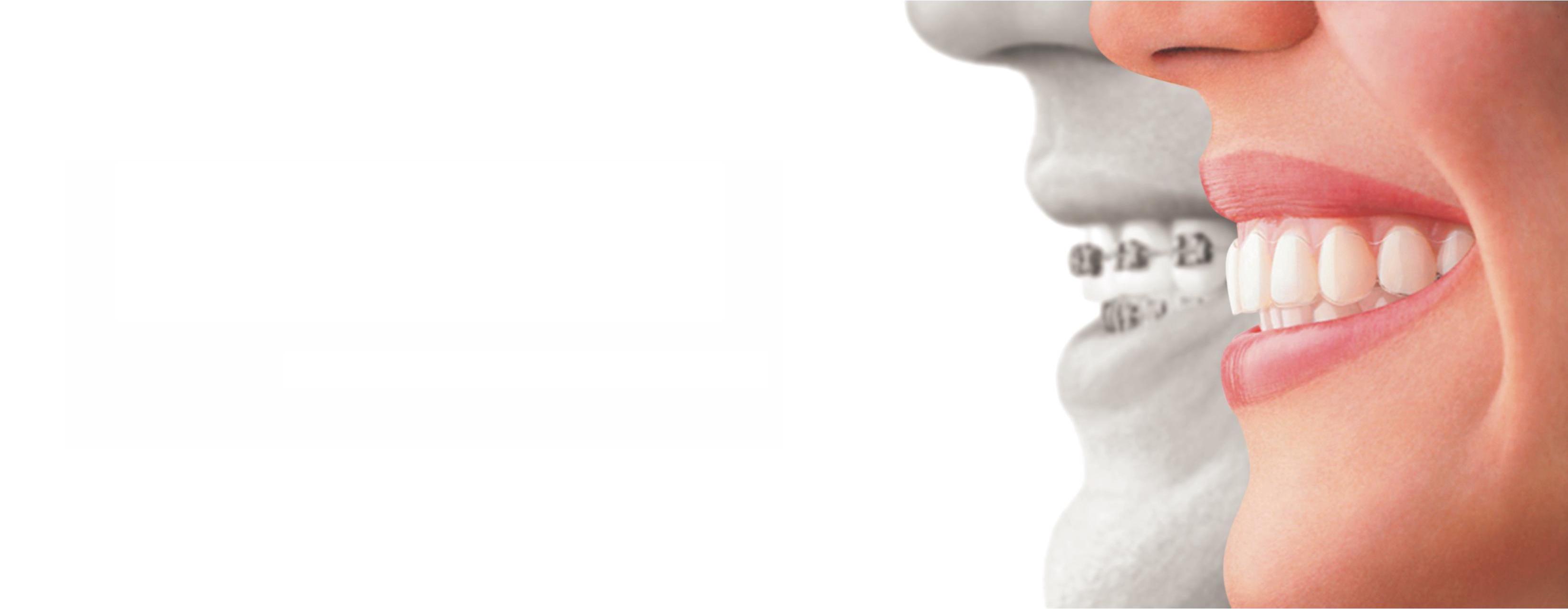 Ortodoncia Invisalign® | druiz Instituto Médico Dental en Burgos