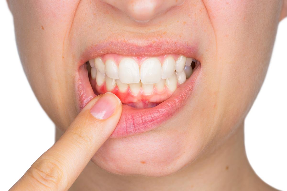 encías sangran clínica dental druiz