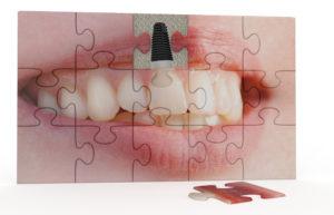 implantes dentales_druiz