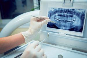 implantes dentales druiz