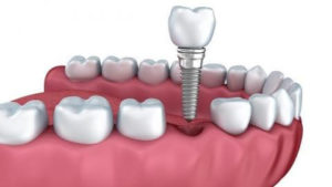 implante-dental-burgos
