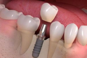 implante-dental-en-burgos