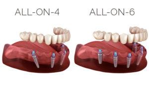 all-on-4-implantes-burgos