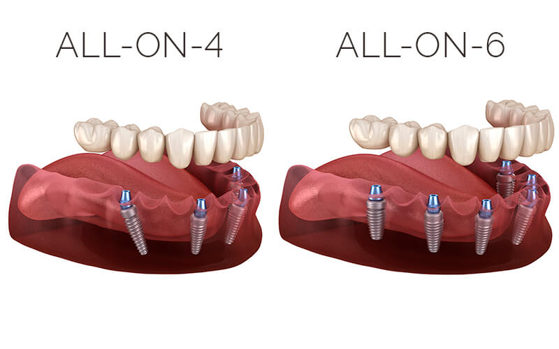 all-on-4-implantes-burgos