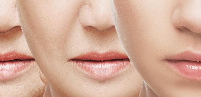 eliminar-arrugas-nasogenianas-burgos