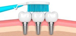 como-cuidar-implantes-dentales