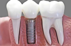 cuidados-tras-tratamiento-implantes-dentales