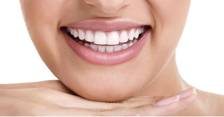 blanqueamiento-dental-en-burgos