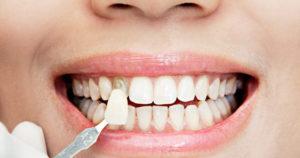 carillas-dentales-clinica-burgos