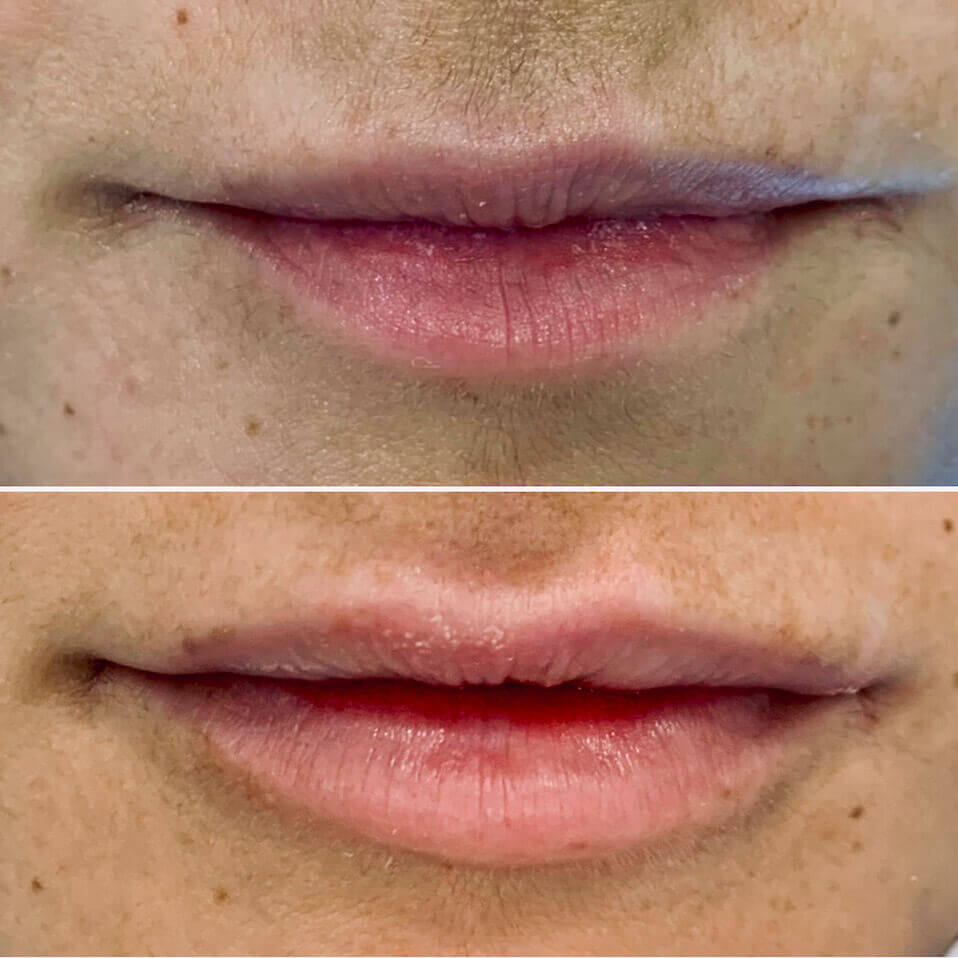acido-hialuronico-aumento-de-labios