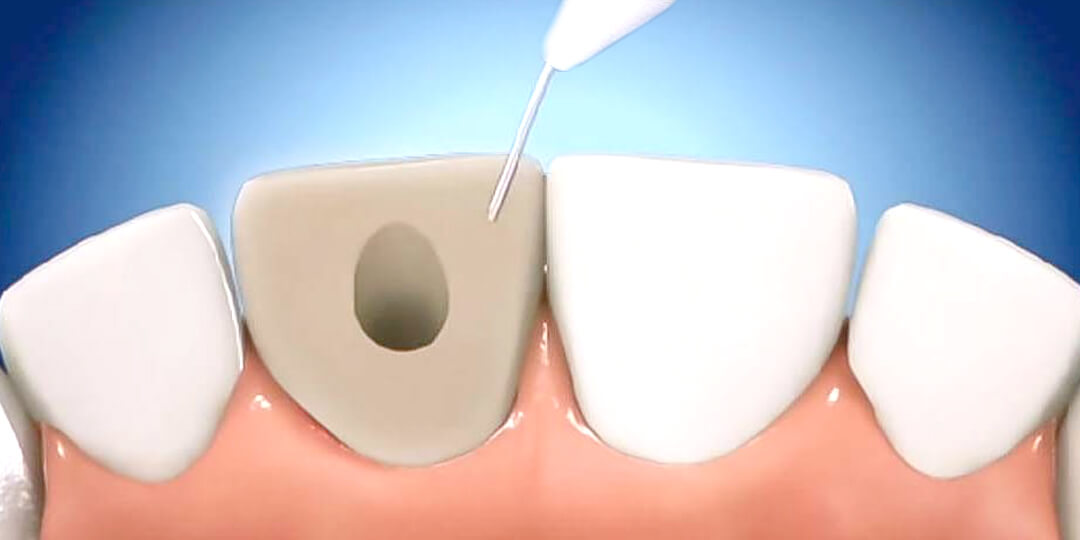 blanqueamiento-dental-interno-clinica-druiz