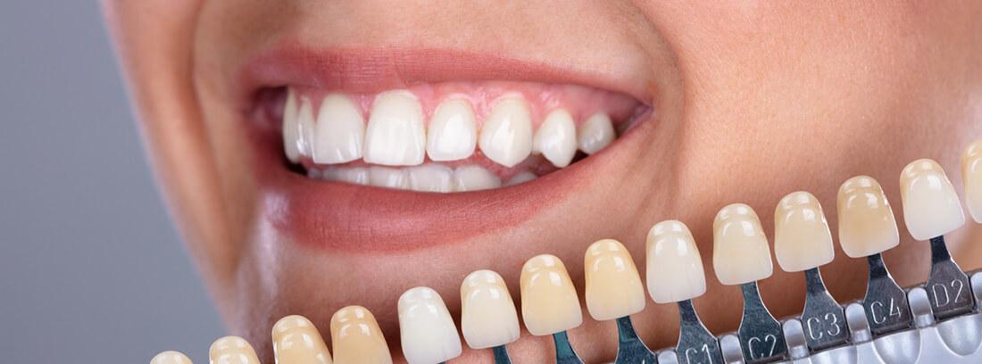 carillas-dentales-clinica-dental-burgos