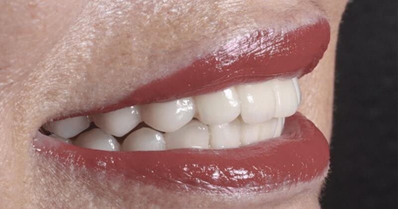 carillas-dentales-composite-clinica-burgos