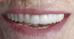 carillas-dentales-porcelana-clinica-burgos
