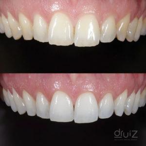 caso-antes-después-blanqueamiento-dental-burgos