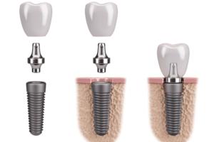 implante-de-carga-inmediata-clinica-burgos