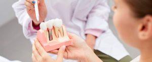 mejores-implantes-dentales-clinica-burgos