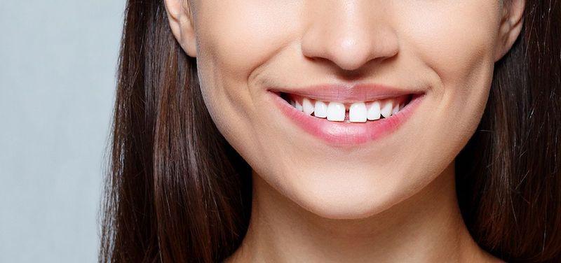 solución-diastema-dientes-separados-microcarillas-burgos