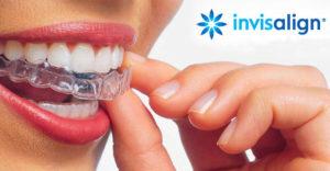 invisalign-tratamiento-clinica-dental-en-burgos