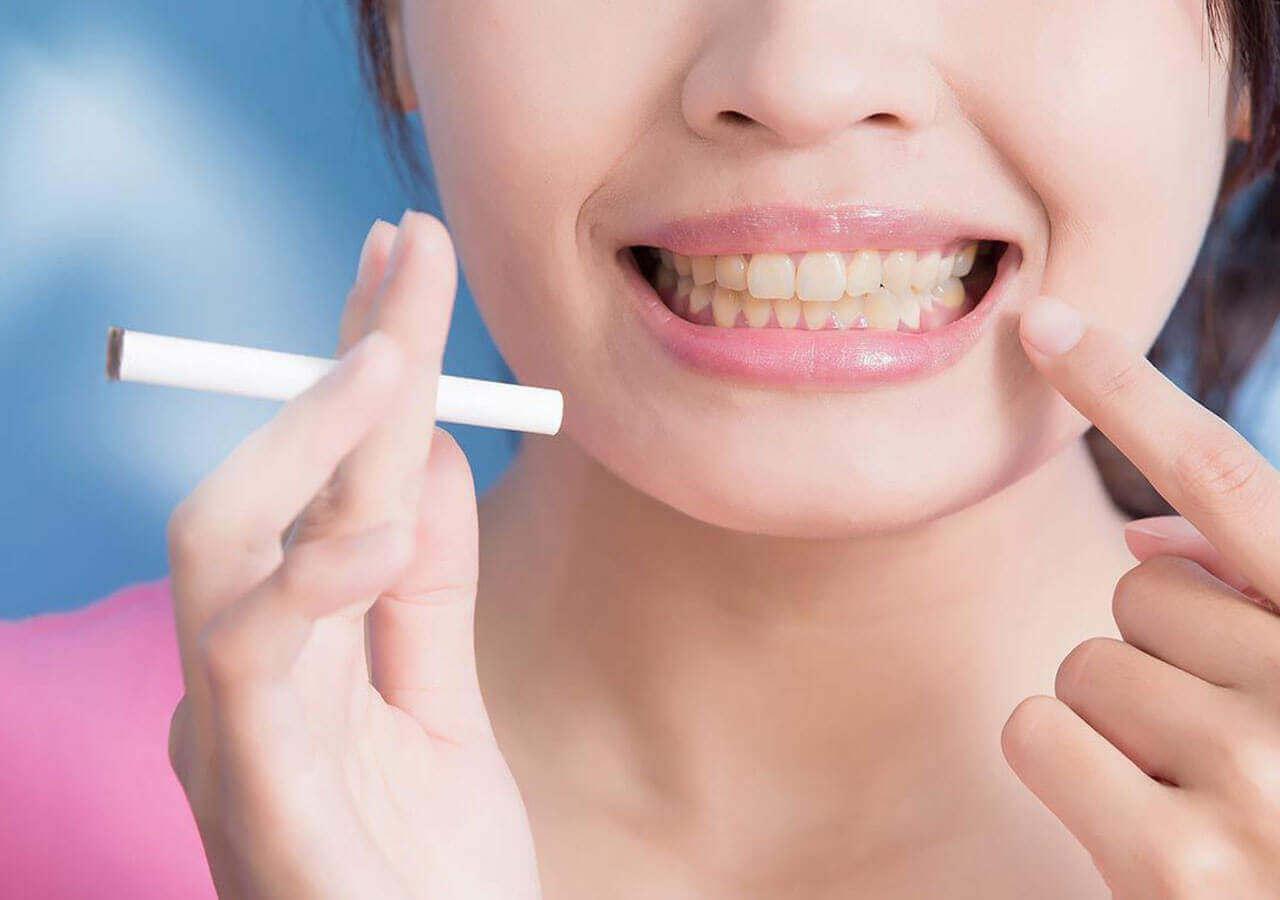 manchas-carillas-dentales-cigarro