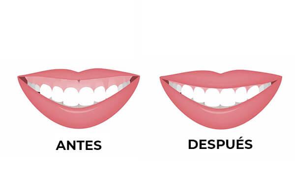 gingivectomia-clinica-dental-burgos