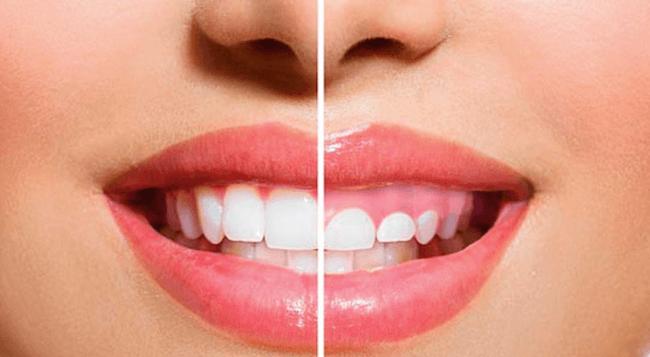 sonrisa-gingival-solución-burgos