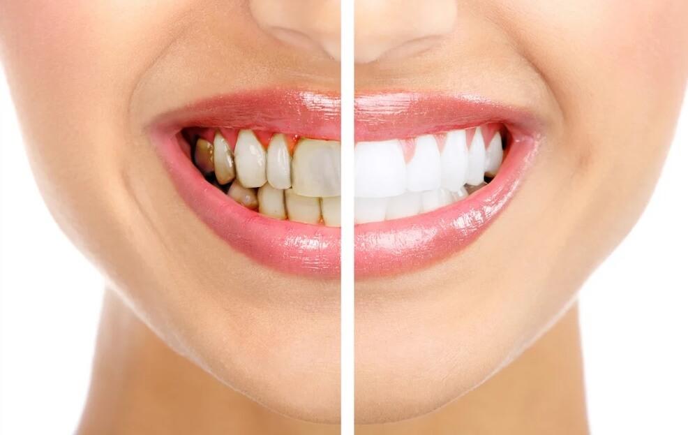 quitar-las-manchas-en-los-dientes