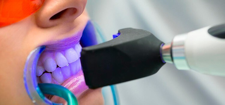 quitar-manchas-dientes-burgos